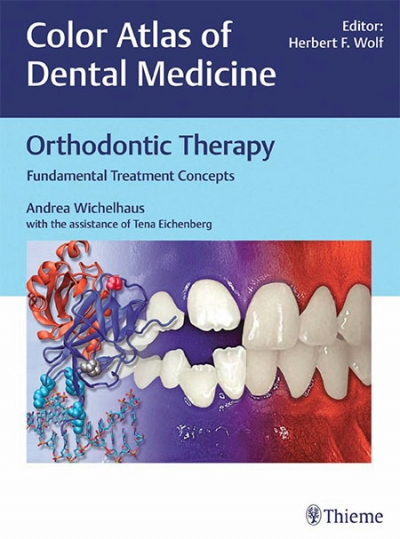 Orthodontic Therapy: Fundamental Treatment Concepts